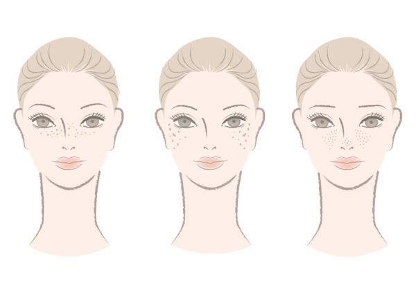 シミ 毛穴の開き そばかす イラスト 女性 美容