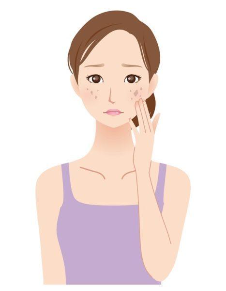 シミに悩む40代女性 美容 スキンケア