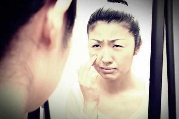 肌トラブルで悩む女性 ほうれい線