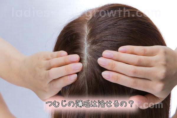 つむじの薄毛は治せるの?つむじの違いを知って改善!7つの方法で悩み解消!!