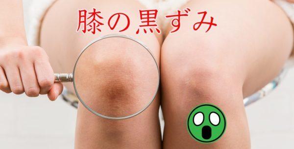 膝の黒ずみを解消するには?原因を知らずに正しいケアは出来なかった…その結末は。